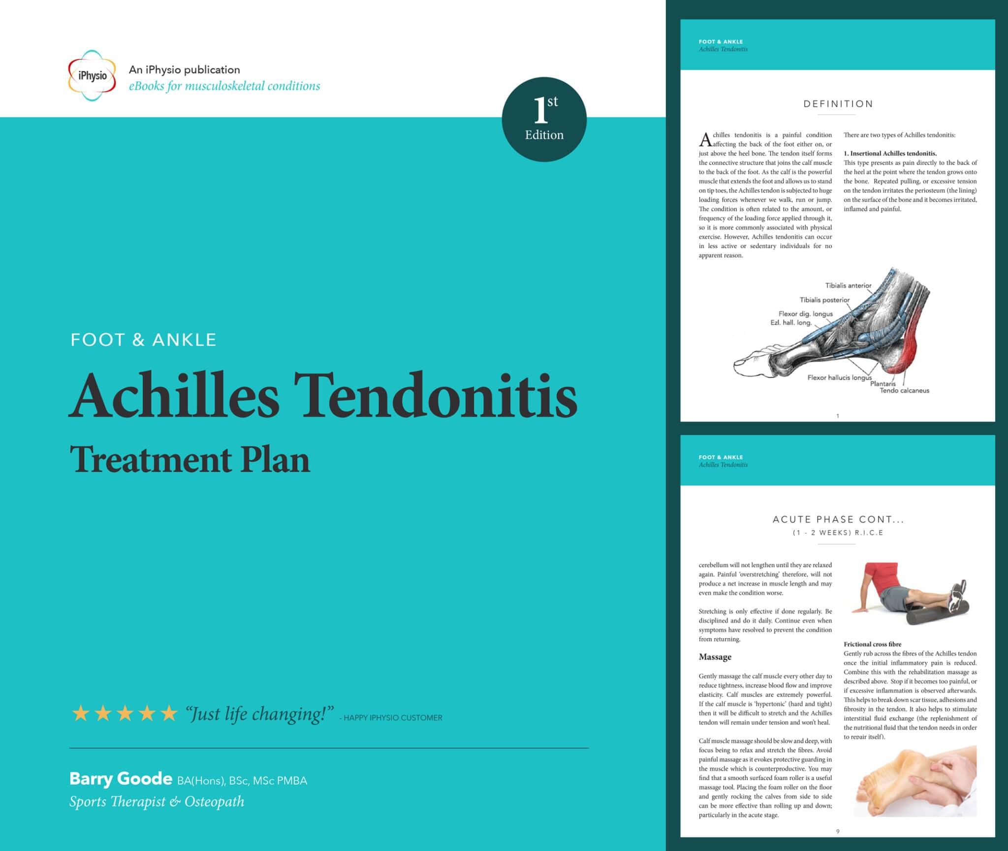 Achilles Tendonitis treatment advice
