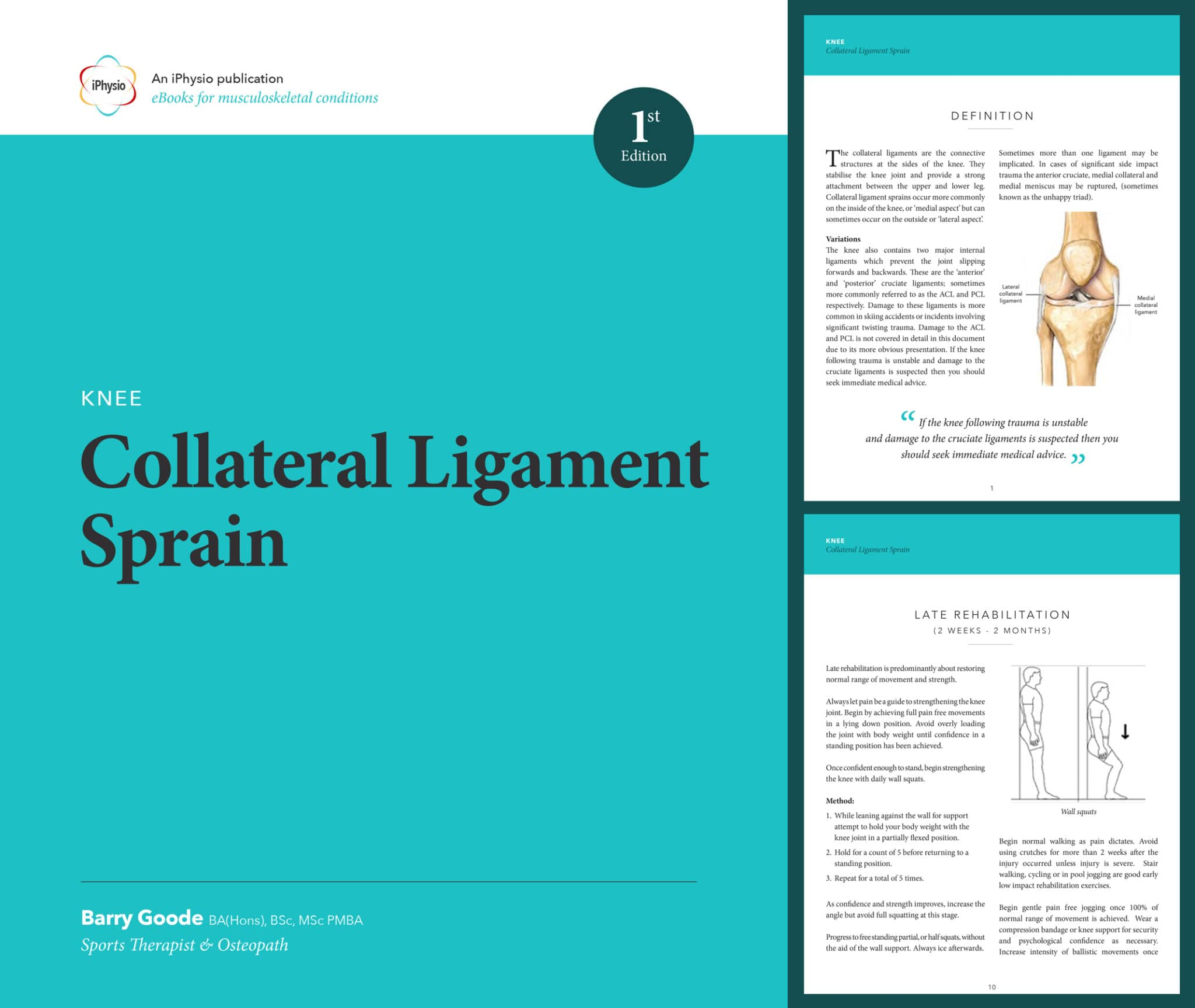 Knee Collateral Ligament Sprain treatment advice