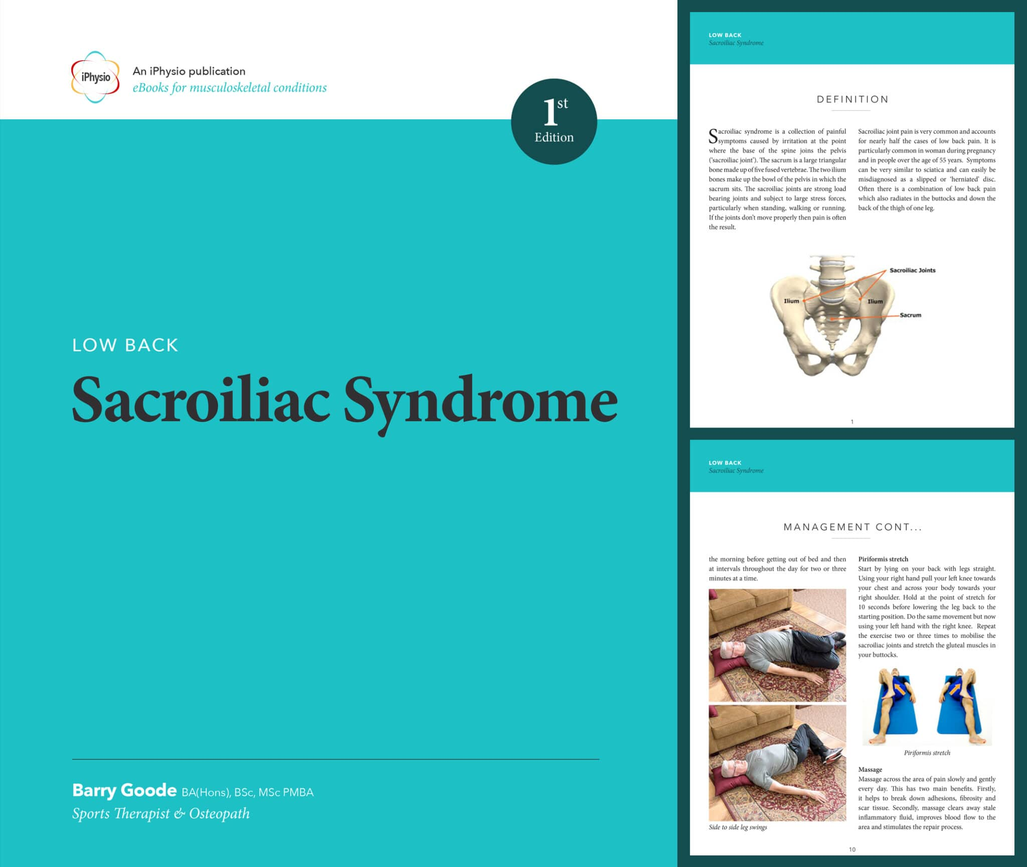 Sacroiliac Syndrome treatment advice